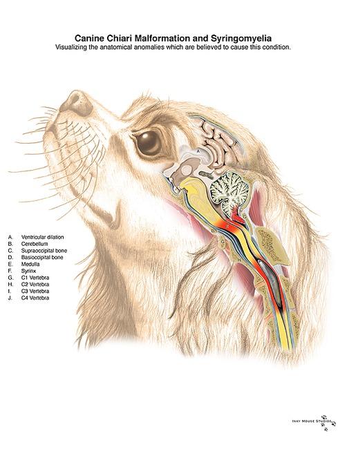 symptomen epilepsie aanval